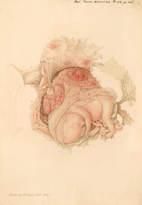 An unborn child by Franz Andreas Bauer - print