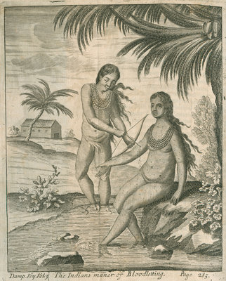 Blood letting practised by the Cuna Indians of Panama, observed by Lionel Wafer by John Savage - print