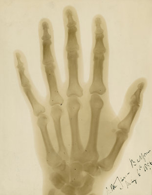 X-ray photograph of the hand of Arthur James Balfour by Alan Archibald Campbell Swinton - print