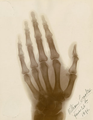 X-ray photograph of the hand of William Crookes by Alan Archibald Campbell Swinton - print