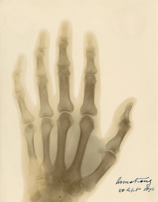 X-ray photograph of the hand of William George Armstrong by Alan Archibald Campbell Swinton - print