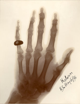X-ray photograph of the hand of William Thomson by Alan Archibald Campbell Swinton - print